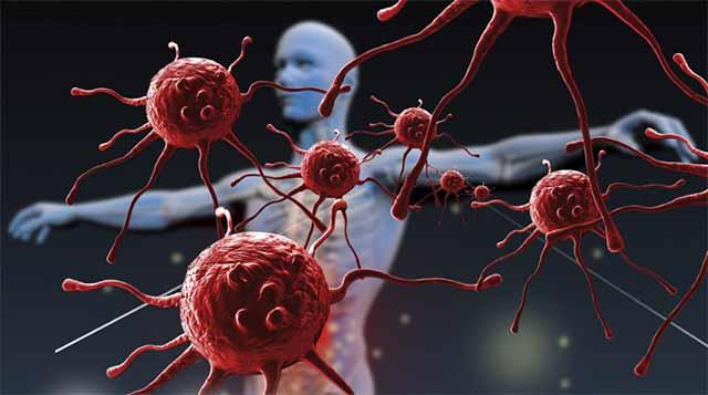 Deficiência do sistema imunológico: quando suspeitar?