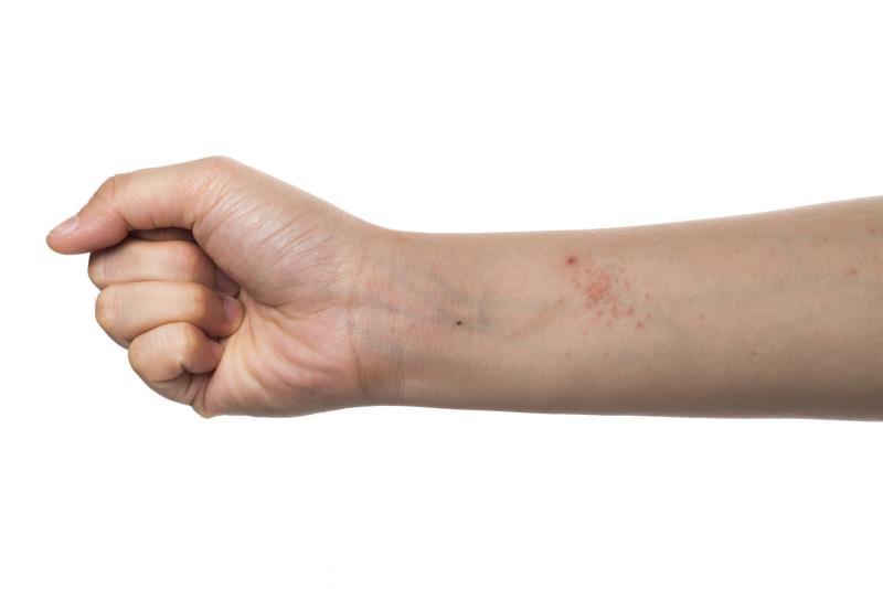 Como lidar com a dermatite de contato